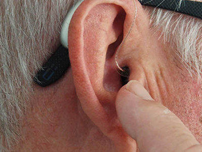 What about a Single-Sided Hearing Loss Deafness
