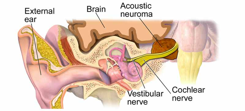 Tinnitus Due To Acoustic Neuroma (or other Head and Neck Tumors)