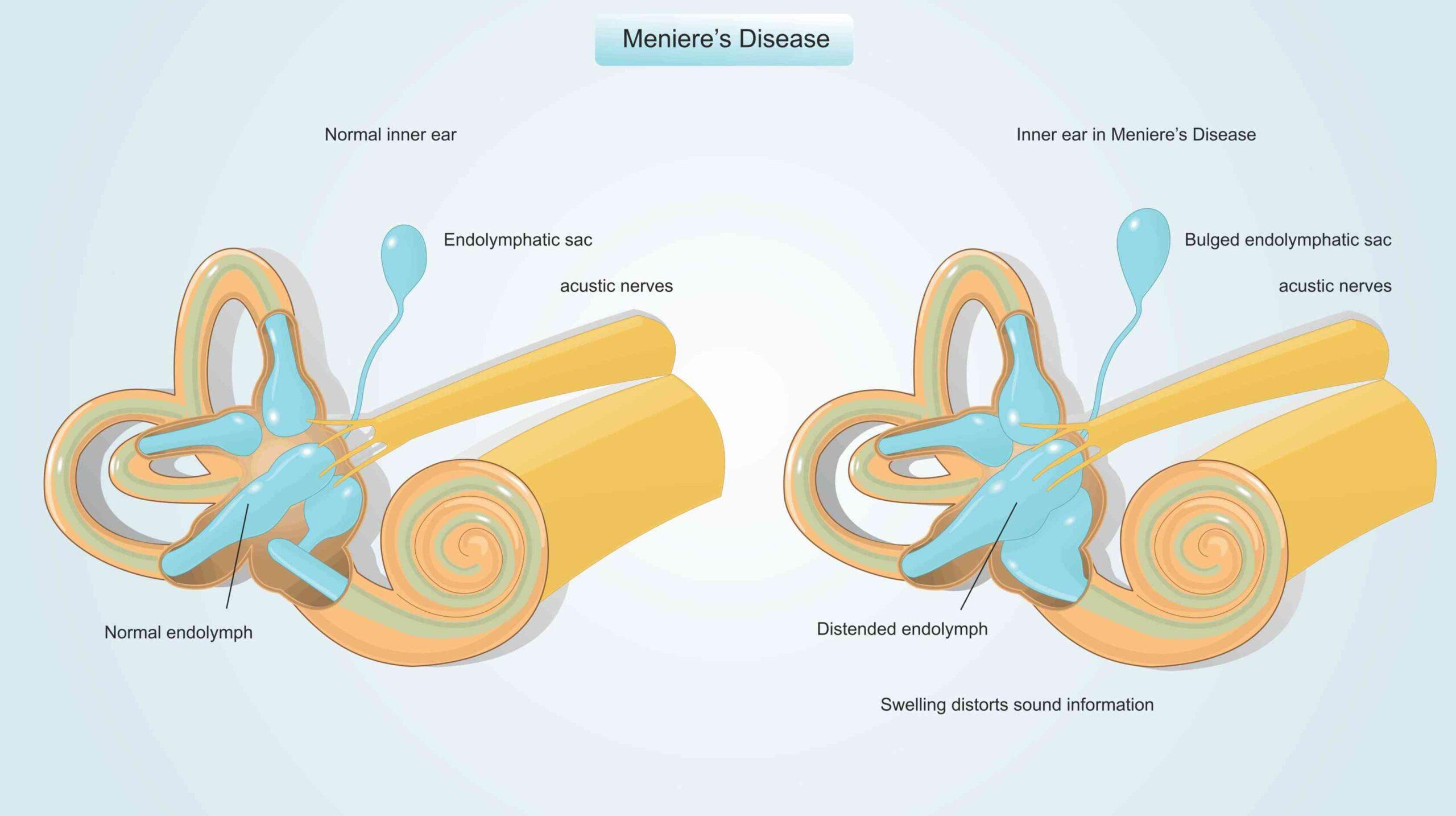 Tinnitus Due To Meniere's Disease