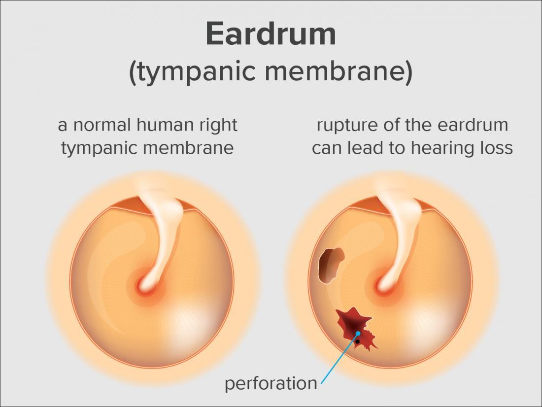 Tinnitus Due To Perforated Eardrum Or Eardrum Rupture